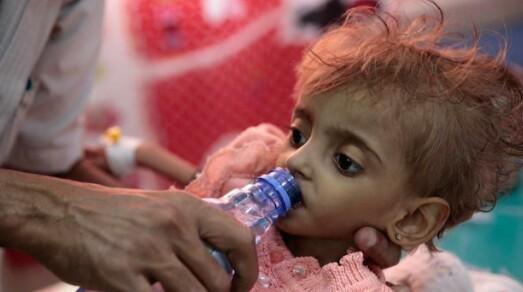 85 mil menores de 5 años muertos por hambre en Yemen: Save The Children